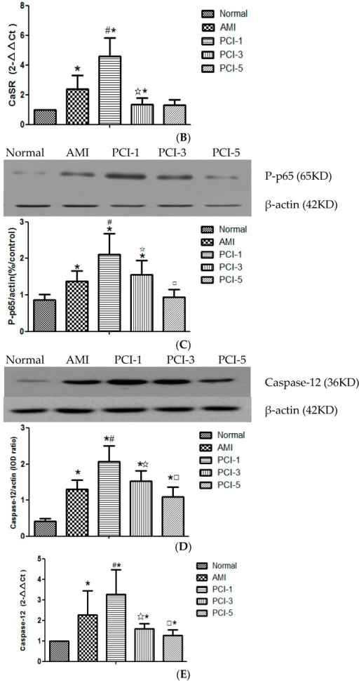 Protein and mRNA expressions of calcium-sensing receptor (CaSR) (A,B) and Caspase12 (D,E) in T lymphocytes and the phosphorylation level of NF-κB pathway protein (C) during the different stages in acute myocardial infarction (AMI). Protein expressions in T lymphocytes were tested by Western blot and qRT-PCR quantitative analysis (n = 20). Expression protein was quantified by densitometry. Expression results are representative of five experiments. * p < 0.05 vs. normal group; #p < 0.05 vs. AMI group; ☆p < 0.05 vs. PCI-1 group; □p < 0.05 vs. PCI-3 group.