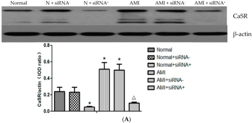 Silence effect of CaSR small interfering RNA (siRNA) transfection. T lymphocytes were transfected with 5 μg positive plasmid or negative plasmid. Protein or mRNA was harvested 24 h post-transfection. Western blot (A) and qRT-PCR (B) results showed that the positive CaSR siRNA plasmid transfection in T lymphocytes reduced the expressions of CaSR mRNA and protein, which increased remarkably in AMI patients. In addition, negative plasmid of CaSR siRNA had no effect on the CaSR expression. * p < 0.05 vs. normal group; Δp < 0.05 vs. AMI group.