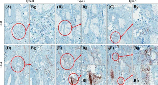 CD4 and CD8 immunohistochemistries for types 1, 2, and 3 hair follicles in alopecia areata (AA) patients: (A) and (D), type 3 AA hair follicles, (B) and (E); type 2 AA hair follicles, (C) and (F); type 1 AA hair follicles. At hair bulb (Bb) areas, CD4+ T lymphocytes infiltrated perifollicularly and CD8+ T lymphocytes infiltrated intrafollicularly, Interestingly, the denser CD4+ and CD8+ T lymphocytes infiltrated around hair bulge (Bg) regions as the histopathologic gradings were worsened.