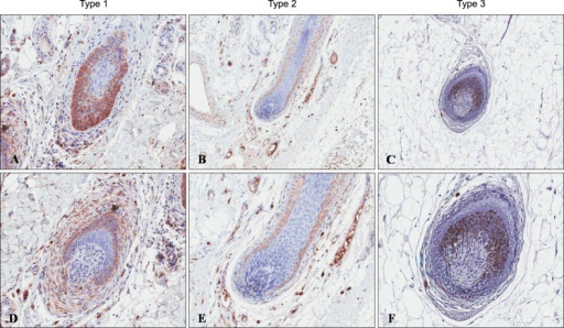 Immunnohistochemistry for transforming growth factor (TGF)-β1. Expression of TGF-β1 was detected in the outer root sheath keratinocyte, regressing epithelial strand, dermal sheath and dermal sheath cells, and its expression was correlated with histopathologic grading (A~C, ×100; D~F, ×200).
