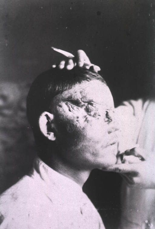 <p>A wound covers the right side of a patient's face around his eye.</p>
