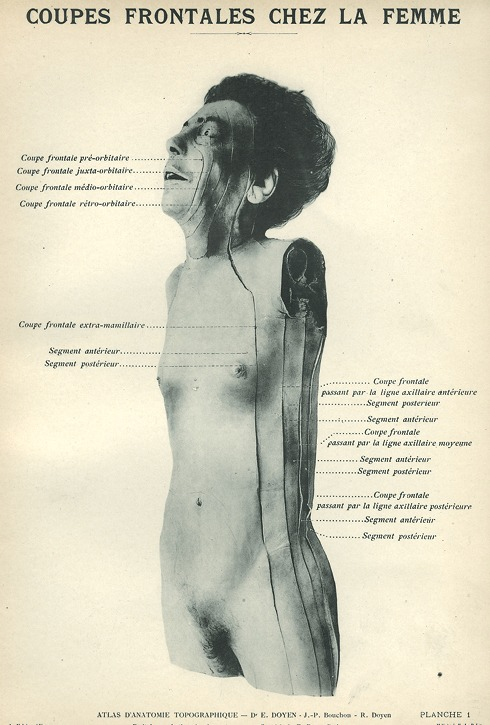 <p>Image of view of woman's body, showing the specific parts: coupe frontale pre-orbitaire, coupe frontale juxta-orbitaire, coupe frontale medio-orbitaire, coupe frontale retro-orbitaire, coupe frontale extra-mamillaire, segment anterieur, segment posterieur, coupe frontale passant par la ligne axillaire anterieure, segment posterieur, segment anterieur, coupe frontale passant la ligne axillaire moyeme, segment anterieur, segment posterieur, coupe frontale passant par la ligne axillaire posterieure, segment anterieur, segment posterieur. Issued in seven installments by the flamboyant Parisian surgeon Eugene-Louis Doyen (1859-1916), this atlas of 279 &quot;heliotyped&quot; photographic plates of cross-sectioned bodies was a radical departure from past practice. Atlas d'anatomie topographique. Planche 1.</p>