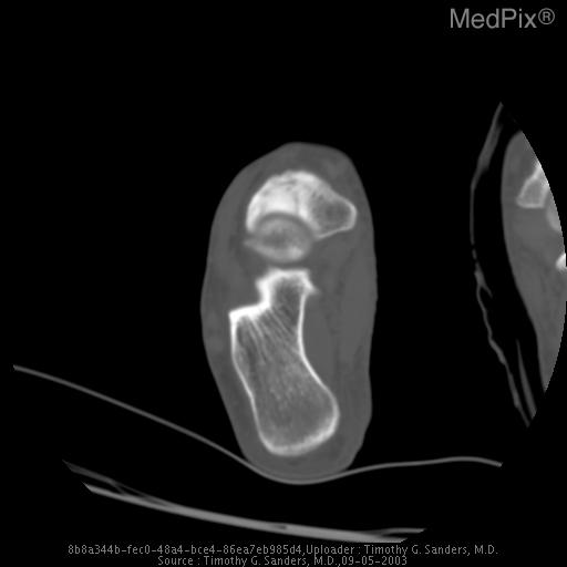 A lucnet line which represents the stress fracture extends through the middle third of the tarsal navicular bone. Adjacent sclerosis is also present.