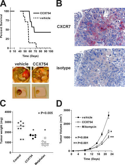 In vivo efficacy of CXCR7 antagonist. Efficacy of CCX754 was evaluated in syngeneic or xenograft mouse models engrafted with (A) human B lymphoma IM9 cells, (C) human A549 lung carcinoma cells, or (D) mouse LL/2 Lewis lung carcinoma cells. Control groups receiving vehicle alone were included in all experiments. Horizontal bars in C indicate means, and error bars in D represent SEM. Images in A show peritoneal cavity of mice bearing IM9 tumor cells and receiving either CXCR7 antagonist (right) or vehicle alone (left). (B) Immunohistochemical analysis of CXCR7 expression on a human biopsy sample of a malignant lung carcinoma. n = 8 in all groups. Statistical differences between treatment groups were calculated using survival curve statistics and the Student's t test using GraphPad Prism software.
