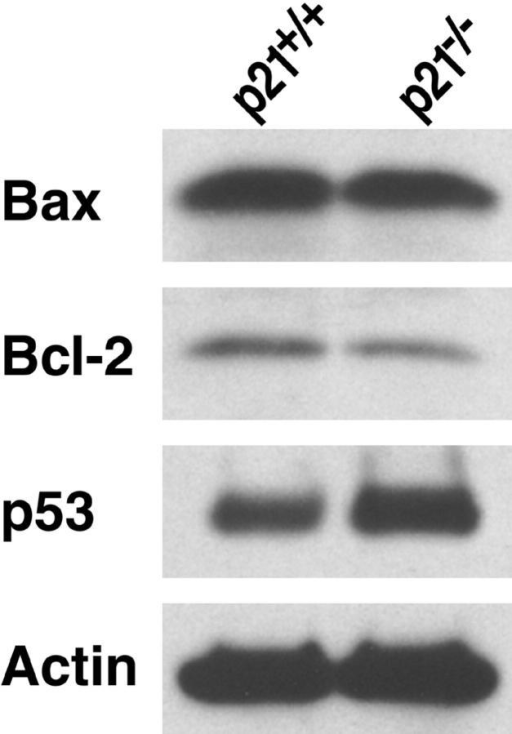 Participation of the intrinsic pathway of apoptosis in p21−/− T cells from male BXSB mice. Increased p53 and reduced Bcl-2 expression in activated p21−/− T cells. T cells (n = 5 mice/group) were activated with 10 μg/ml anti-CD3 plus 5 μg/ml anti-CD28, and lysates were analyzed by Western blot.