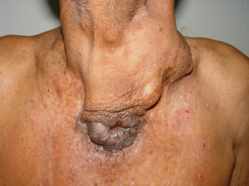 Photograph showing carcinoma of thyroid with sinus extending downwards and opening in front of the manubrium. The metastatic nodal disease on the left side of the neck can also be appreciated.