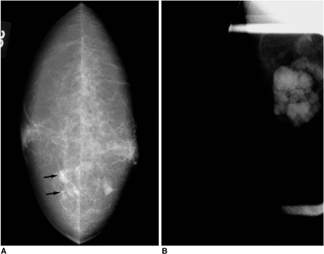 A 48-year-old-woman with axillary node metastasis.A. Mammography reveals the presence of clustered microcalcifications (arrows), without mass, in the right inner central area. At sonography, however, neither a breast nodule nor the above-mentioned microcalcifications are seen. Surgical excision after needle localization confirmed the presence of ductal carcinoma in situ, with microinvasion.B. Axillary view depicts multiple hyperdense enlarged lymph nodes.