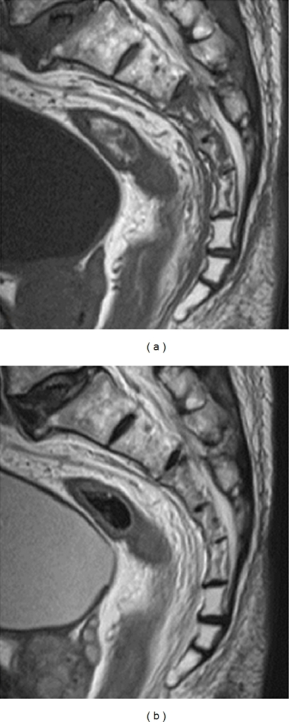 Preoperative magnetic resonance image. (a) Sagittal plane on a T1-weighted image and (b) sagittal plane on a T2-weighted image Third, fourth, and fifth sacral vertebral bodies showed low intensities on T1- and T2-weighted images.
