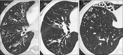 Three types of bronchial dilatation can be seen in patients with bronchiectasis, and their appearance on CT can be classified into a cylindrical, b varicose and c saccular shapes