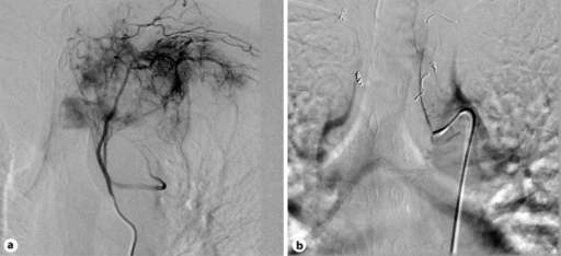 a Angiography shows that the vessels feeding the tumor were the first, second, and third intercostal arteries. b The vessels were embolized with gelform particles. Moreover, the first and second left intercostal artery branch to the vertebra was set in vortex coils and, in order to mark up, the right intercostal artery was set in vortex coils.
