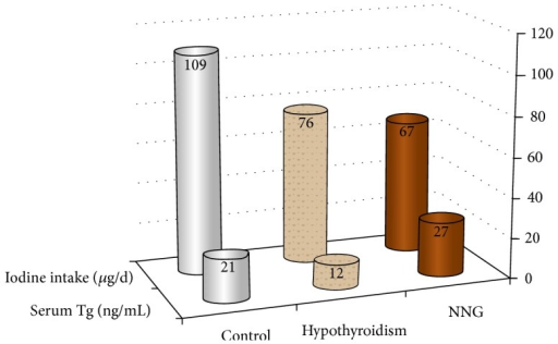 Medians of estimated dietary iodine intake and serum Tg by group. Numbers at the top of each column are median values. Tg: thyroglobulin; NNG: nontoxic nodular goiter; ng/mL: nanogram per milliliter; μg/d: microgram per day.