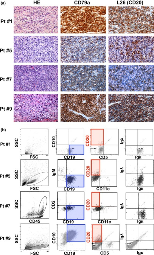 Immunohistochemistry (IHC) and flow cytometry (FCM) analysis of de novo diffuse large B-cell lymphoma (DLBCL) patients with the CD20 IHC(+)/FCM(−) phenotype. Representative data for four patients are indicated. (a) IHC analysis using anti-CD79a and L26 (anti-CD20) antibody. All those patients were diagnosed as CD79a(+) and CD20(+) de novo DLBCL. (b) FCM analysis of patients showing the CD20 IHC(+)/FCM(−) phenotype. B-cell lymphoma cells were confirmed by gating of SSC, FSC or CD45 expression levels, as well as the CD19-positive phenotype. CD20 expression in those cells was significantly low with FCM analysis. FSC, forward scatter; HE, hematoxylin–eosin staining; Ig, immunoglobulin; L26, anti-CD20 antibody for IHC; Pt #, patient number; SSC; side scatter. Original magnifications (a); ×200 (Olympus BX51TF microscope, Olympus, Tokyo, Japan, and Nikon DS-Fi1 camera, Nikon, Tokyo, Japan).