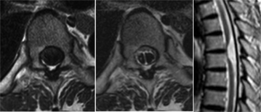 Axial T1, T2-weighted MRI (left, center) shows significant right ventral shift of the spinal cord and a dorsal midline subarachnoid septum at T5–T6 disc level. The midline septum is observed only at this level. Sagittal T2-weighted MRI (right) shows ventral displacement of the spinal cord at T5–T6 disc level. Focal ventral kinking and adhesion of the spinal cord is apparent with an enlarged dorsal subarachnoid space.