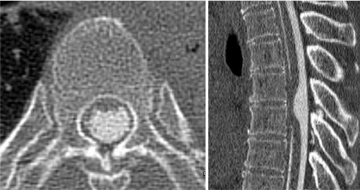 Axial CT myelography at the same level as the MRI axial image (Figure 1) shows no pooling of contrast medium ventrally to the spinal cord, an uninterrupted flow of contrast material and no filling defect.