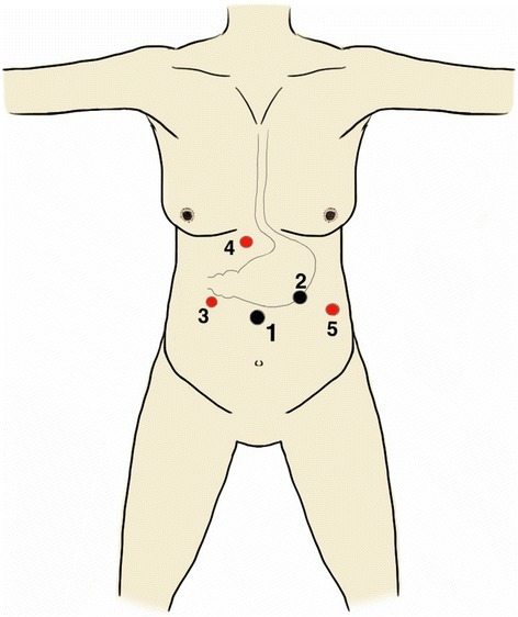 Port position. 1: Supraumbilical 12-mm camera port; 2: Left mid-clavicular 11-mm right-hand working port; 3: Right mid-clavicular 5-mm left-hand working port; 4: Subxiphoid 5-mm liver retraction port and 5: Left anterior axillary 5-mm retraction port. (Black denotes 11 to 12 mm ports and red denotes 5mm ports).