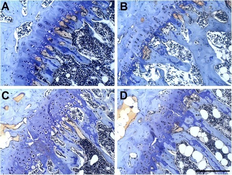 Photo micrographs of the proximal tibial growth plate of lean control (A), lean resveratrol-treated (B), obese control (C), and obese resveratrol-treated (D) mice. Obese mice had growth plate chondrocytes that appeared to be more disorganized than those of lean mice. Mice treated with resveratrol had significantly greater calcified cartilage areas than controls (P < 0.05). Toluidine blue and aqueous fast green, 20x magnification. Scale bar = 100 μm. * calcified cartilage; ** bone.