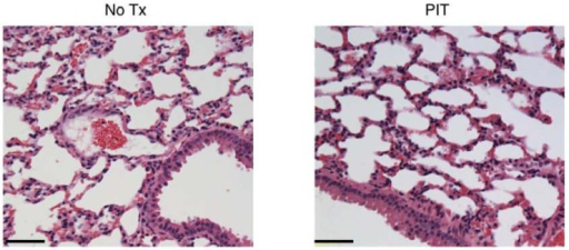 Histological evaluation of NIR-PIT effect on lung. No apparent damage to the lung was showed by HE-staining at 1 day after NIR-PIT compared to no Tx. Bar = 50 µm.