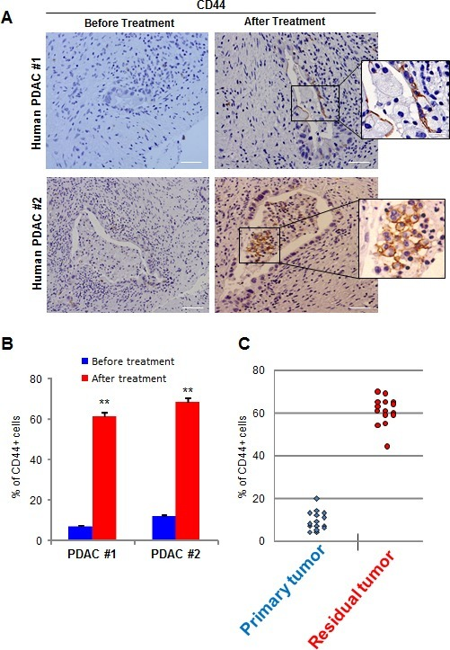 CD44 expression in human samples(A) CD44 expression was evaluated in human PDACs before and after chemotherapy. A magnification is shown on the right side of the figure. (B) Quantification of CD44-positive cells from. (C) Quantification of CD44-positive cells from 15 non-treated patients (Primary Tumor) and 15 chemotherapy treated patients (Residual Tumor) is shown. Scale bar represents 50 μm. Error bars ± SEM; n=15 per group. **P<0.001 compared to samples before treatment.