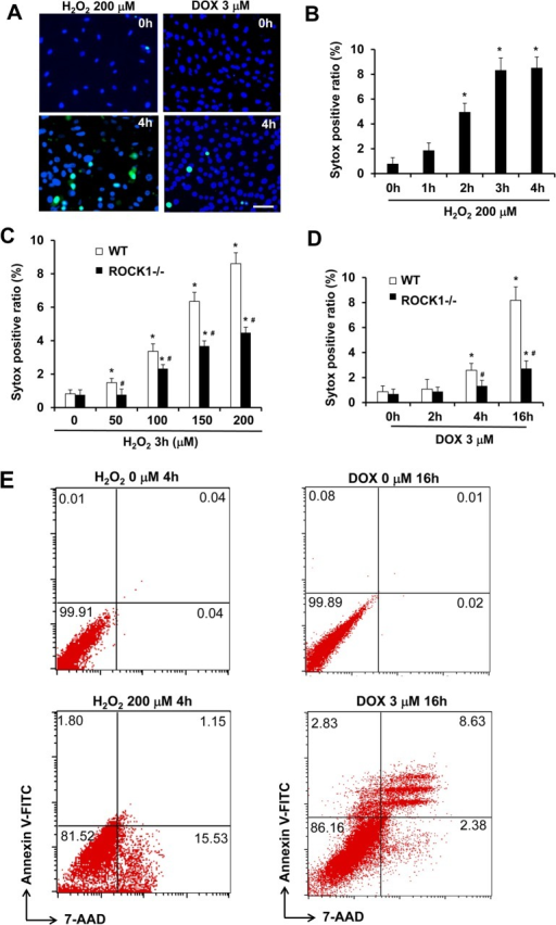 ROCK1 deletion attenuates doxorubicin- and H2O2-induced necrotic cell death.(A). Representative images of Sytox Green (Green) and Hoechst 33342 staining (blue) of WT MEFs treated with 200 μM of H2O2 or 3 μM doxorubicin for 0 or 4 h. Bar, 200 μm. (B-D) Necrotic cells measured by Sytox Green staining in attached WT and/or ROCK1-/- MEFs at indicated time points and dosages of H2O2 and doxorubicin. The ratio of Sytox Green positive cells was expressed as percentage of attached cells. At least 10,000 cells were analyzed for each condition. *P < 0.05 vs. control of the same genotype. #P < 0.05 vs. WT under the same treatment condition. (E) Representative scatter plots of necrosis and apoptosis quantified by FACS analysis after staining with annexin V and 7-AAD in attached WT and ROCK1-/- cells collected after treatment for 4 h with 200 μM of H2O2 or 16 h with 3 μM doxorubicin. Viable cells are annexin V−/7-AAD−; annexin V+/7-AAD− cells are in early apoptosis; annexin V+/7-AAD+ cells are in late apoptosis; necrotic cells are annexin V−/7-AAD+. Necrotic cells induced by H2O2 are predominantly annexin V negative, whereas the majority of necrotic cells induced doxorubicin are annexin V positive (late apoptosis).