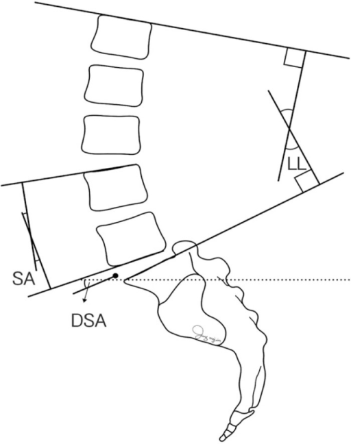 Artistic Illustrations Depicting The Disc Slope Angle