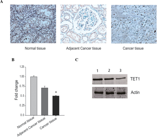 Expression levels of TET1 in renal carcinoma tissues. (A) TET1 was detected in renal carcinoma tissues using immunohistochemical staining. The tumor tissue samples were obtained from patients with either low or high grade renal carcinoma. Normal renal tissues were used as a control. (B) mRNA expression levels of TET1 were measured in the renal carcinoma and control tissue samples samples using reverse transcription-quantitative polymerase chain reaction. The mRNA expression levels of actin were used as an internal control *P<0.05, compared with normal tissue and adjacent tissue. (C) Protein expression levels of TET1 were determined in the renal carcinoma and control tissue samples. Lane 1 was from normal renal tissue, Lane 2 was from low tumor grade renal carcinoma and Lane 3 was from high tumor grade renal carcinoma. The protein expression levels of actin were used as an internal control. TET1, ten-eleven translocation methylcytosine dioxygenase 1.