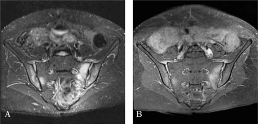 MRI of the sacroiliac joints, TIRM sequence (turbo inversion recovery magnitude) (A) and T1FS sequence (T1 fat-suppressed sequence) after contrast agent administration (B): bilateral bone marrow edema in the subchondral layer of the iliac and sacral bone with changes prevailing on the left side undergoes contrast enhancement; and (B) bilateral inflammation of the anterior joint capsule and synovitis