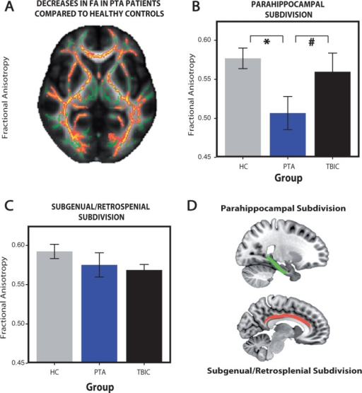 Reduced white matter integrity in PTA patients compared to healthy controls. (A) Fractional anisotropy (FA) reductions in whole-brain white matter (skeletonized) from a direct contrast between the healthy controls and PTA patients. Green = normal white matter; red = damaged areas (low fractional anisotropy). Fractional anisotropy changes within the parahippocampal (B) and subgenual/retrosplenial (C) subdivisions of the cingulum bundle. (D) Parahippocampal (red) and subgenual/retrosplenial (green) subdivisions of the cingulum bundle. *Significance at P < 0.05, hash symbol indicates a trend. Error bars represent the standard error of the mean (SEM). HC = healthy controls; TBIC = TBI controls.