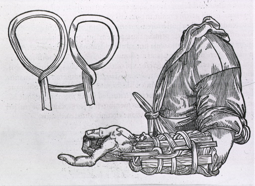 <p>Arm, with forearm in wooden apparatus with staves and bandages to serve as a cast or splint; inset shows the method of looping the bandage.</p>