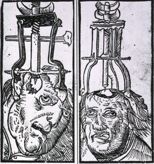 <p>Two heads with drilling instruments applied to them.</p>