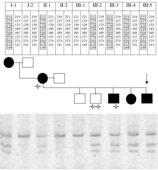 Haplotypes and restriction fragment polymorphism (RFLP). Haplotypes were analysed using the markers surrounding CCM1 as described in Methods. The markers from top to bottom were: D7S2409, D7S1813, D7S1789, D7S646, D7S558, D7S689, D7S652 and D7S492. Exon 17 was amplified with the primers and aliquots of the PCR were digested overnight at 37°C with MseI. The fragments were separated in an 8% polyacrylamide gel containing urea and, after staining with ethidium bromide, the gel was photographed under UV. The undigested product is 297 pb long and the fragments separated from the TTAA restriction site are 158 and 139 pb. Therefore, individuals harbouring the 1902insA mutation have three fragments of 297, 158 and 139 bp. Filled symbols in the pedigree refer to patients with CCMs in the echo-gradient MRIs. Arrow indicates the proband. Stairs refer to asymptomatic carriers of the mutation. The double stair denotes the asymptomatic carrier with MRIs free of CCMs