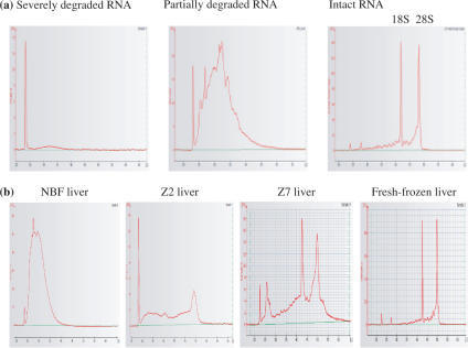 Assessment of mouse liver RNA quality using the Agilent 2100 Bioanalyser. (a) Typical graphs showing severely degraded, partially degraded and intact RNA. (b) Graphs showing RNA quality from tissues fixed in: NBF, Z2, Z7 and also fresh-frozen mouse liver.