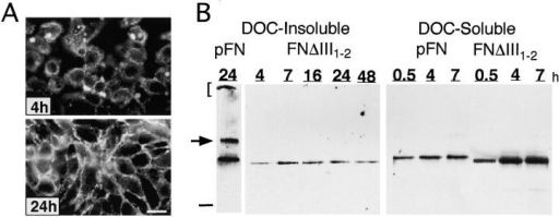 Assembly of FNΔIII1–2. (A) CHOα5 cells were incubated for either 4 or 24 h in the presence of 50 μg/ml FNΔIII1–2. Monoclonal antibody IC3 was used to detect recFN matrix by immunofluorescence. (B) DOC-soluble and -insoluble cell lysates were isolated from CHOα5 cells incubated in the presence of 50 μg/ml FNΔIII1–2 or pFN for 0.5, 4, 7, 16, 24, and 48 h. DOC-soluble and -insoluble material was analyzed as described in Fig. 3. Arrow and bracket indicate locations of high molecular mass multimers. Dash indicates location of 180-kD molecular mass standard. Bar, 10 μm.
