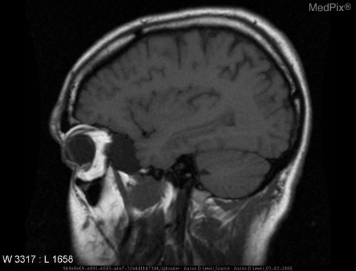 Cystic lesion anterior to the left temporal lobe, measuring about 3.0 x 3.0 x 3.5 cm, which follows signal characteristics of CSF on all sequences and is consistent with an arachnoid cyst.