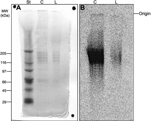 Polyacrylamide gel electrophoresis of proteoglycans extracted from human corneal explants. Aliquots (5 μl) of proteoglycans extracted from pair number 1 (see Table 1) of human corneal explants were submitted to polyacrylamide gel electrophoresis, as described in Methods. The gel was stained with coomassie blue (A), and the 35S-labeled compounds were localized by radioautography (B). St: molecular weight standard proteins; C: control cornea; L: LASIK submitted cornea.