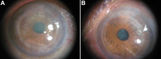 Clinical photographs of corneas in one affected member (I-1) in Family 2 at 63 years of age. The right eye (A) contained opacifications from presumed recurrent disease 20 years after a penetrating keratoplasty. The left eye (B) showed a corneal implant that was transparent after a penetrating keratoplasty 10 years ago. This eye compounded with the primary cataract and the corrected visual acuity with pinhole is 20/32.