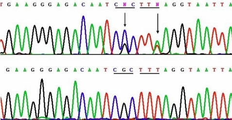 Sequencing results of the two novel mutations c.1702G>C and 1706T>A (p.Arg514Pro and Phe515Leu) of TGFBI in Family 1, and their corresponding normal sequences. Arrows indicate the mutation positions. Underlines highlight the codons that contain the mutations.