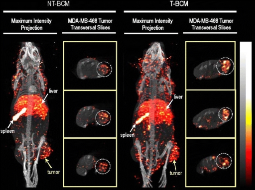 MicroSPECT/CT images illustrating the whole-body biodistribution of the non-targeted block copolymer micelles (NT-BCM) and targeted block copolymer micelles (T-BCM) labeled with 111In, in MDA-MB-468 tumor-bearing mice that were injected intravenously at a dose of 250 mg/kg of PEG-b-PCL copolymer. The maximum intensity projection and the tumor transverse slice images were acquired at 48 h post injection. The tumor transverse slices shown represent consecutive sections of the tumor at an approximate thickness of 4 mm/section (77). Reproduced with permission from Elsevier.