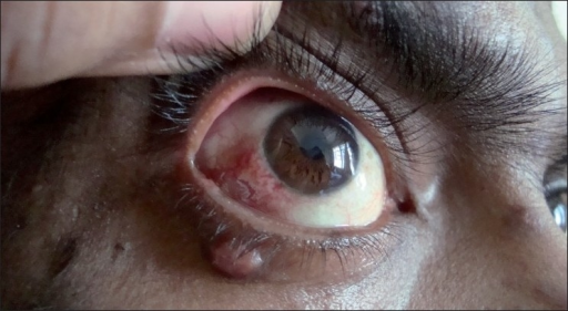 Conjunctival nodule with congestion in the right eye