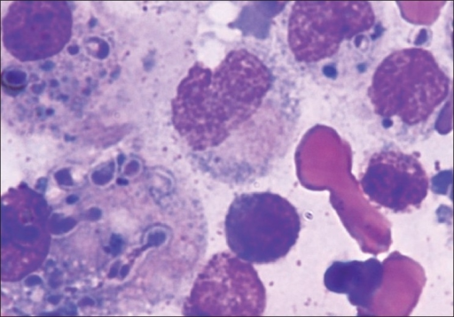Bone marrow aspirate smears showing a reactive marrow with few extracellular and intracellular histoplasma within macrophages (Leishman stain, ×100)