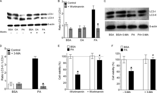 Inhibition of autophagy rescued endothelial cells from PA-induced death.A, representative Western blot showing LC3 cleavage of cells that were incubated for 8 h with BSA alone, 0.5 mm OA, or 0.5 mm PA in the absence (−) and presence (+) of 10 μm wortmannin. B, statistical data of LC3 cleavage from Western blots shown in panel f (n = 3 for all conditions). *, p < 0.05 versus control. C, representative Western blot showing LC3 cleavage of cells that were incubated for 8 h with BSA alone or 0.5 mm PA in the absence (−) and presence (+) of 10 mm 3-MA. D, statistical data of LC3 cleavage from Western blots shown in panel f (n = 3 for all conditions). *, p < 0.05 versus control. E, columns represent average cell viabilities that were determined using the MTT assay of cells not pretreated with wortmannin (left pair of columns, −Wortmannin) that were incubated for 24 h with BSA alone (left white column, n = 3) or with 0.5 mm PA complexed to BSA (left black column, n = 3), and cells pretreated with 10 μm wortmannin (right pair of columns, +Wortmannin) for 20 min prior to an incubation with either BSA alone (right white column, n = 3) or with 0.5 mm PA complexed to BSA (right black column, n = 3). *, p < 0.05 versus BSA, and #, p < 0.05 versus PA without wortmannin. F, cells were treated with 10 mm 3-MA, another specific inhibitor of PI3K III and autophagy, and cell death was analyzed by the MTT assay (n = 3 for all conditions). *, p < 0.05 versus BSA, and #, p < 0.05 versus PA without 3-MA.