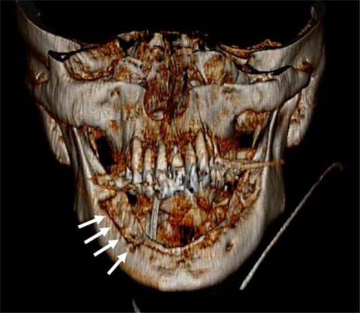 Three-dimensional reconstruction of spiral computed tomography of the mandible using volume rendering technique. Note the extensive cortical defects of the mandible (arrows) suggestive of osteonecrosis.