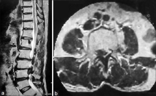 (a) Preoperative T2 sagittal MRI section of the same patient showing degenerative LCS L3-4, L4-5 with degenerated disc at L2-3, L3-4, L4-5. Discs at L3-4 and L4-5 were found to be soft and bulging intraoperatively and hence were removed along with posterior decompression, laminectomy and pedicle screw fixation from L2 to L5, (b) Preoperative T2 axial MRI section showing large herniated disc at L3-4. The patient attained JOA score of 28 at 3 months followup which was maintained till last followup of 7 months