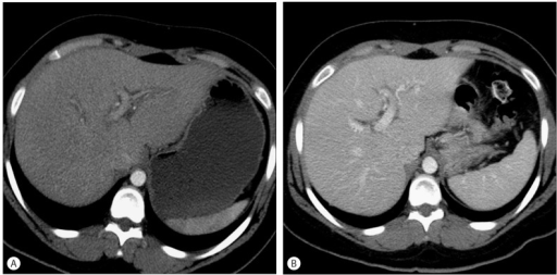 Acute Hepatitis. Twenty nine-year-old female with lymphoma on cyclophosphamide and doxorubicin chemotherapy among other agents. Post treatment course was complicated by increase in liver enzymes. (A) Axial contrast enhanced CT images shows decreased hepatic attenuation with mild peri-portal edema consistent with acute hepatitis. (B) After three months, findings of hepatitis were resolved.