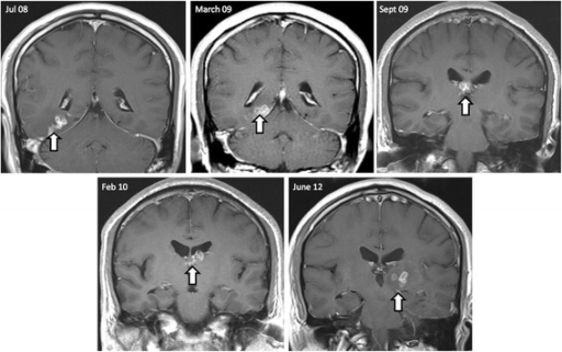 Sequential imaging over a 4-year period identifies migrating lesions. Sequential imaging over 4-year period: July 2008 to June 2012. All images are coronal T1 scans post gadolinium. The shifting white arrow, from right to left hemispheres, depicts the migration pattern of a cluster of ring-enhancing lesions.