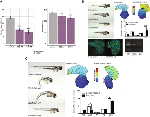 OPEN prioritized genes contribute to cardiac phenotypes in zebrafish. (A) Knockdown of USP13 caused a dose-dependent decrease in cardiac output, due to both a decrease in heart rate and ventricular stroke volume. (B) Injection of a morpholino (MO) targeting a specific splicing event in FLNCb (see Materials and methods) caused apparent cardiac-specific defects. Images on the right show embryos at 48 hours post-fertilization (hpf) with decreasing injected morpholino concentration. Optical mapping confirmed a significant decrease in cardiac conduction velocity in isolated hearts following FLNCb splice inhibition (top right: isochronal maps on right, red box indicates measured region of interest, isochrones are 5 ms apart). Conduction velocity was unaltered in other regions of the heart (middle right: bar graph, regions examined were atrial inner curvature (AIC), atrial outer curvature (AOC), AV node (AV), ventricular inner curvature (VIC), and ventricular outer curvature (VOC)). Additionally, FLNCb splice inhibition resulted in increased atrial cardiomyocyte size (bottom left: beta-catenin stained in green, DAPI in blue, V and A denote ventricle and atria, respectively). RT-PCR confirmed inhibition of the predicted splicing event in FLNCb (bottom right). (C) Knockdown of SVIL causes cardiac edema as well as noticeable spinal curvature at higher morhpolino doses, with only cardiac edema notable at lower doses. Images on left again show decreasing morpholino dose at 48 hpf. Optical mapping (right) confirmed a significant decrease in atrial conduction velocity following SVIL knockdown. ***P < 0.001, **P < 0.01, *P < 0.05.