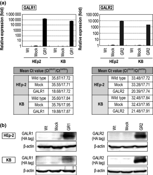 Expression of GALR1 and GALR2 using individual recombinant AAV vectors in head and neck squamous cell carcinoma (HNSCC) cells. (a) Quantitative RT-PCR was performed to measure GALR1 and GALR2 expression in wild type (Wt) or HNSCC cells transduced by each of the rAAV vectors. (b) Western blot results showing exogenous GALR1 and GALR2 expression in Wt or HNSCC cells transduced by each of the rAAV vectors, as detected by an HA-antibody.