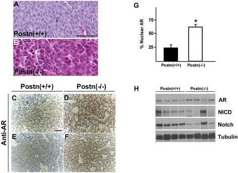 Loss of Postn leads to increased AR levels and activity. (A) H&E staining of primary tumors derived from wildtype (A) and Postn- mic (B). Postn-deficient tumors displayed an apocrine-like morphology with granular eosinophilic cytoplasm and prominent nucleoli. (C-F) Immunohistochemical analysis of independent tumors from Postn- mice shows an increase in AR levels and nuclear localization (G). At least 1000 nuclei from 3 independent tumors were assessed for AR nuclear translocation. The average and S.E.M. is shown. *P <0.05. (H) Western blot analysis of Postn- tumors reveals that Notch downregulation results in AR upregulation. Note one tumor sample where low AR levels can be correlated to high levels of Notch.