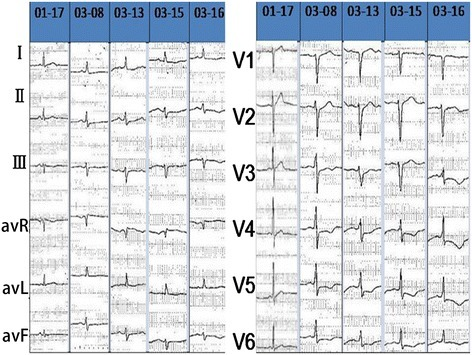 The dynamic changes of ECG. T waves in leads V3–V6 observed in ECG were flat or inverted.
