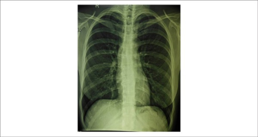 Chest radiograph shows normal cardiac silhouette, with slightly bulged right upperarch (dilated ascending aorta) and also dilated descending aorta. Hyperdensity canbe observed in some lower borders of ribs.