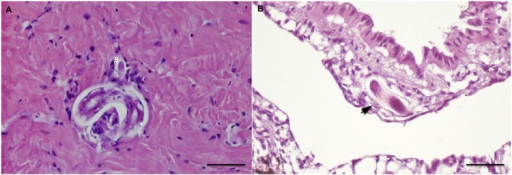 Histopathology: Free larvae of A. abstrusus (21 dpi) in snail foot observed in transverse (hash) and oblique sections (star) in the fibro-muscular tissues.(A); oblique larval section of T. brevior (9 dpi) the subpallial tissue (arrow) (B) (scale bar = 50μm; H&E).